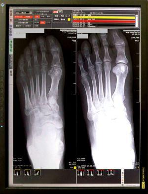 左足のレントゲン:右前回、左今回