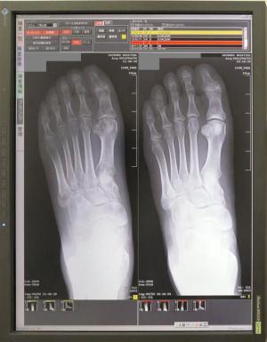 左足のレントゲン:右初診時、左今回