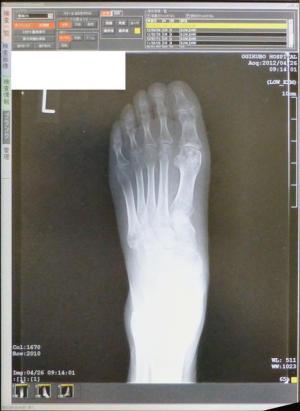 左足のレントゲン2012/4/26